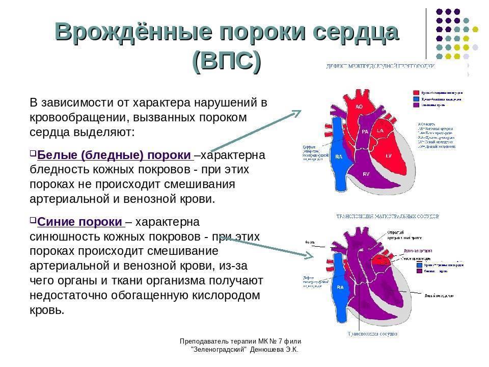 Причины, вызывающие врожденный порок сердца у детей, симптомы и методы лечения
