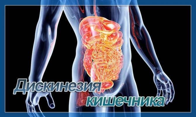 Дискинезия кишечника: страхи и реальность