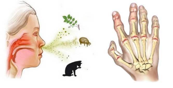 Артрит у детей - причины, симптомы и лечение воспаления суставов | medeponim.ru