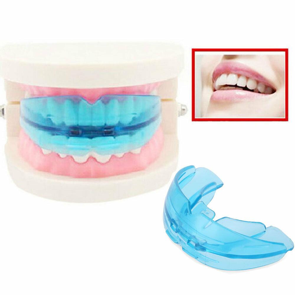 Выравнивание зубов: капы, элайнеры, брекеты, пластины, отзывы, цена. выравнивание зубов у детей