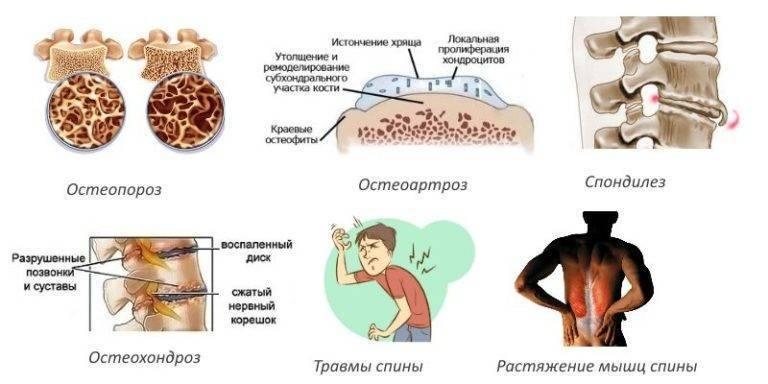 Остеопороз у детей и подростков: причины, клинические симптомы, тактика лечения