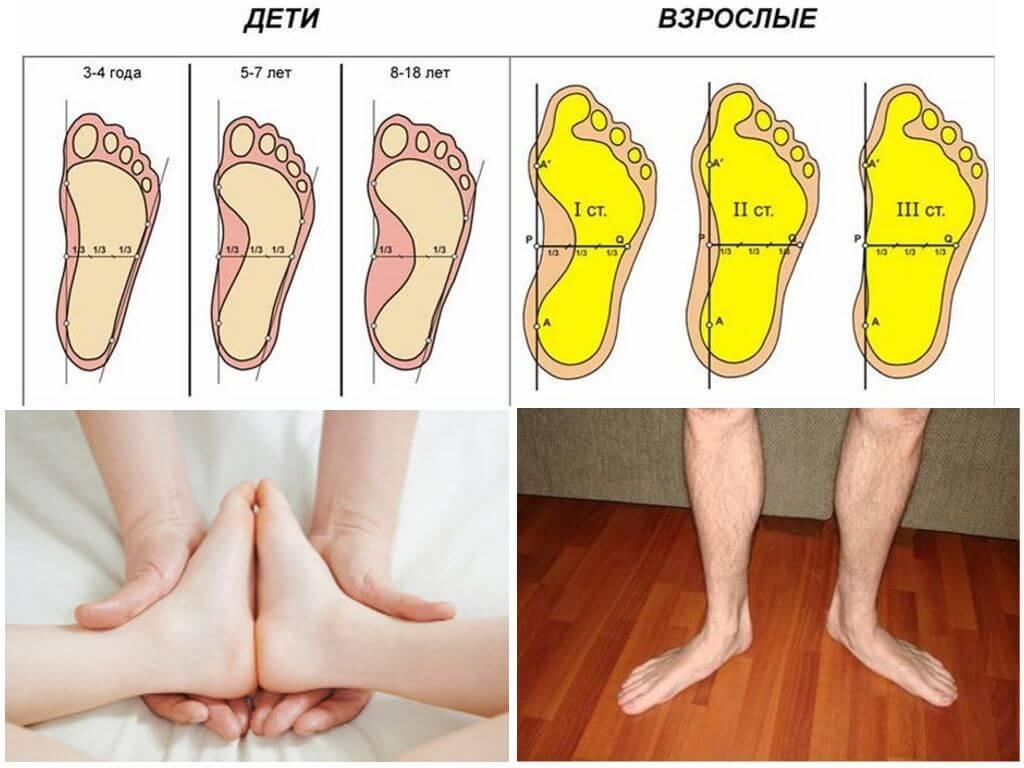 Варусная деформация стопы у детей: лечение искривления ног
