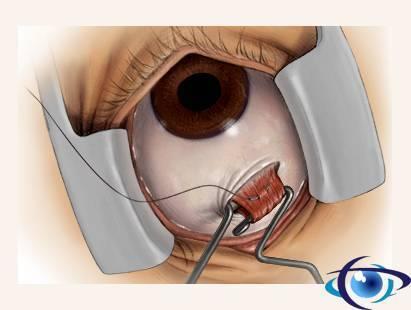 """Склеропластика глаз у детей - что это такое, какие есть """"за"""" и """"против"""" для операции?"""