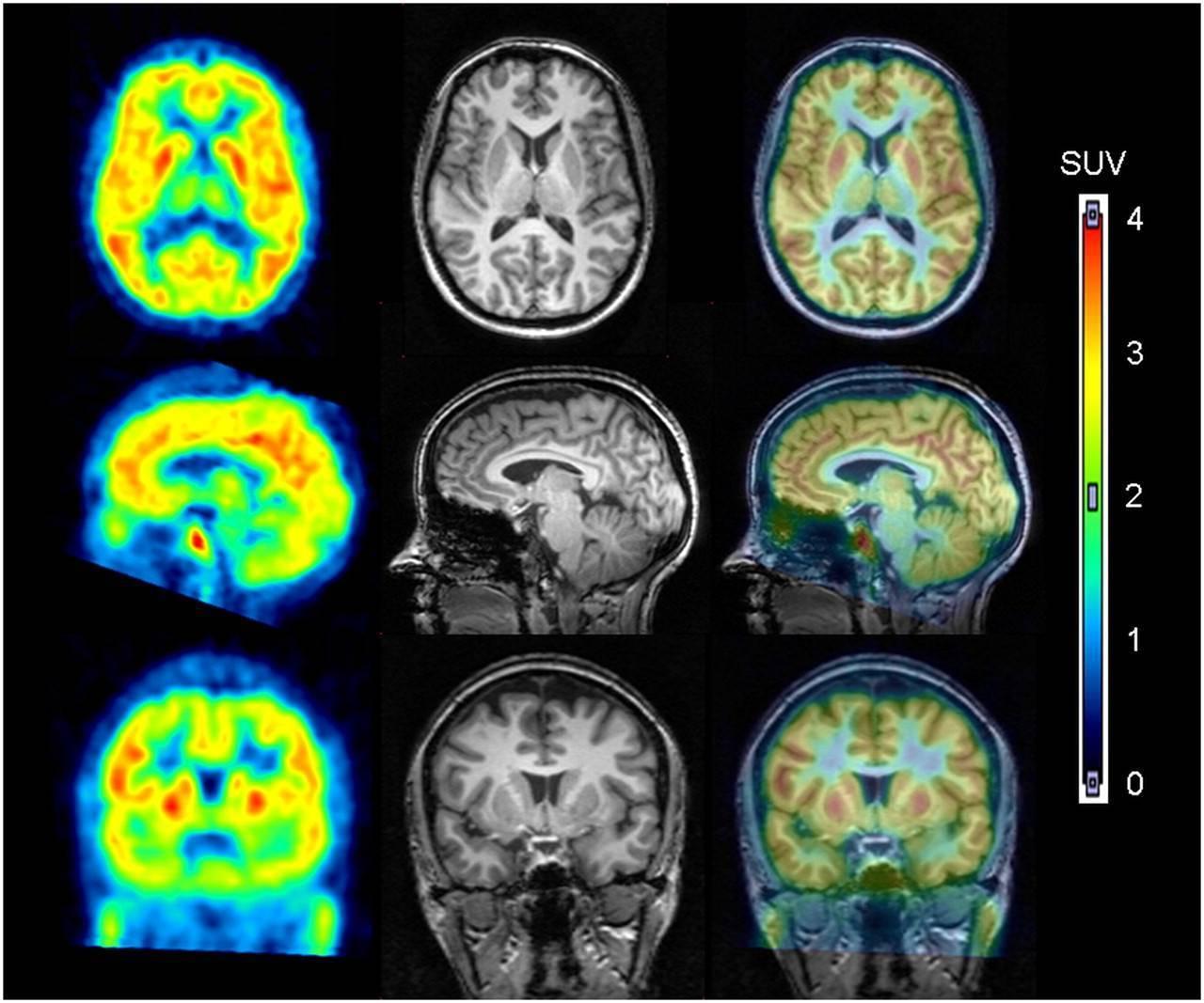 Зачем кт головного мозга назначают ребенку?