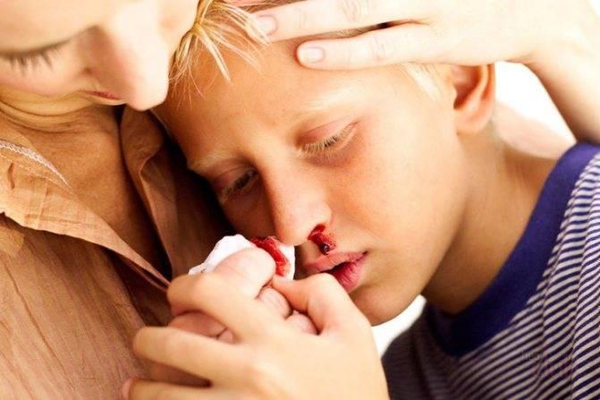 Травмы у детей: сотрясение мозга, ушибы, ожоги, переломы, носовые кровотечения, что делать, если ребенок проглотил инородный предмет, особенности родовых травм у новорожденных