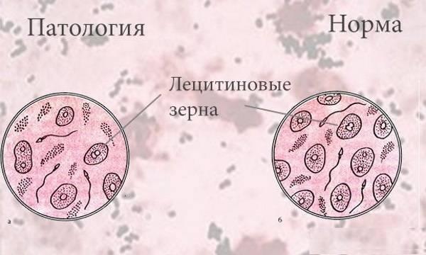 Лецитиновые зерна в секрете простаты единично
