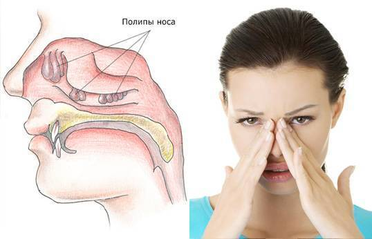 У ребенка забит нос но соплей нет чем лечить - педиатор