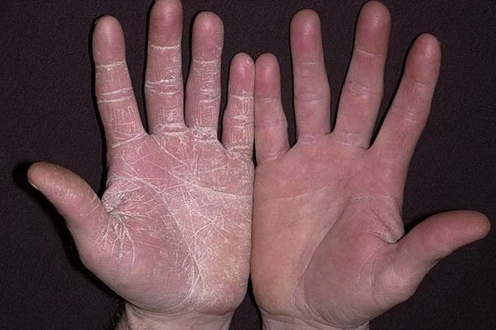 Заболевания кожи у ребенка. виды и симптомы кожных заболеваний у детей   здоровье детей