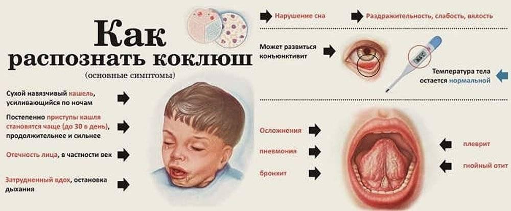 Кашель после АКДС у ребенка, сопли и другие симптомы: причины и лечение