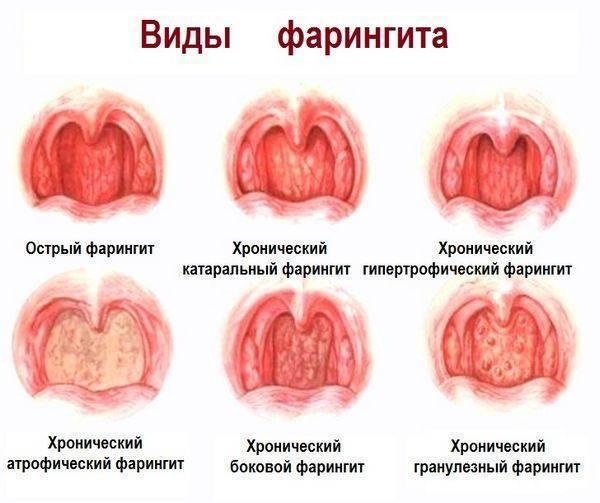 Прыщики в горле у ребенка: белые и красные пузырьки на задней стенке и миндалинах с фото