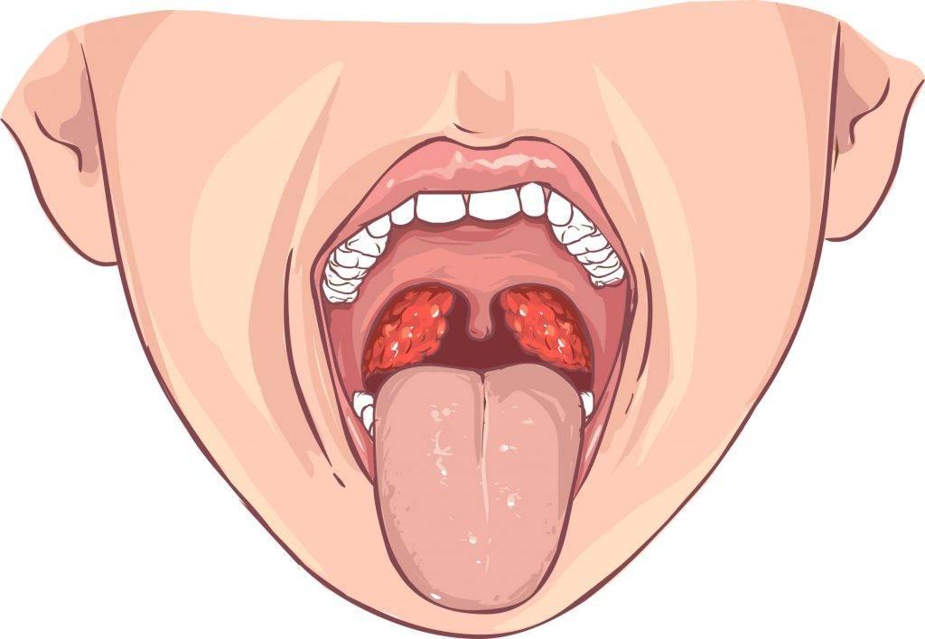 Герпес в горле у ребенка (с фото): как лечить вирусную инфекцию с высыпаниями на миндалинах?