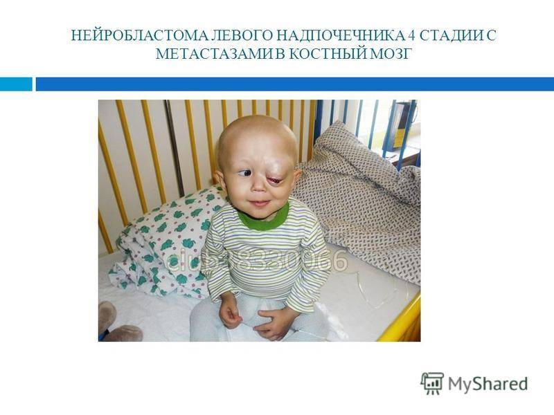 Нейробластома у детей (25 фото): что это такое, симптомы и лечение нейробластомы надпочечника, забрюшинного пространства, прогноз и выживаемость