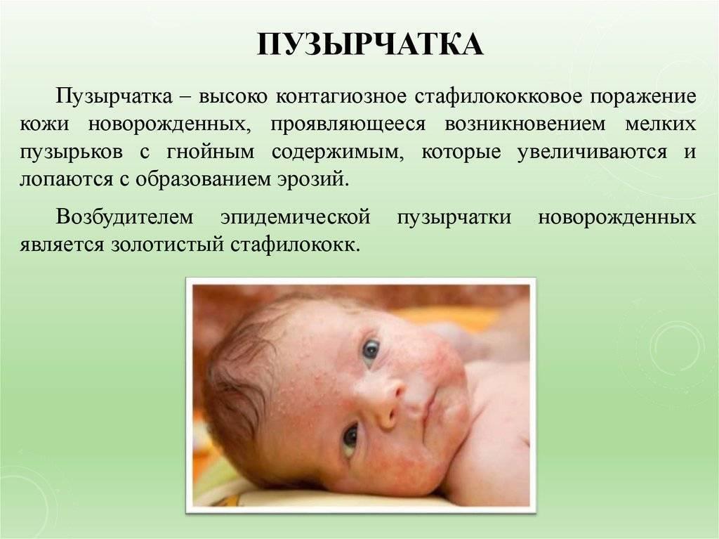 Пузырчатка у детей (вирусная, истинная и прочие формы): симптомы, лечение, диагностика болезни, фото
