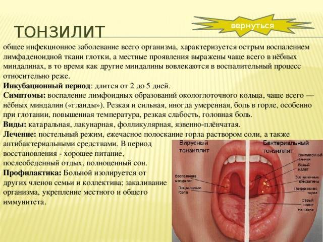 Лакунарная ангина у детей, ее симптомы и длительность лечения