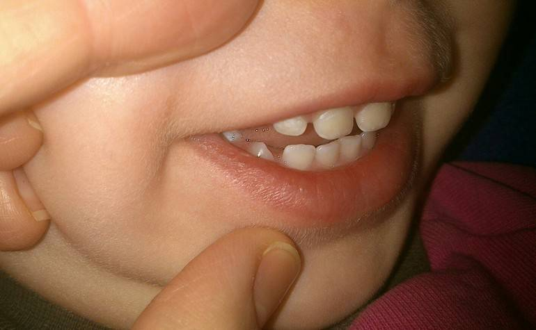 Белые пятна на зубах у ребенка: причины и лечение
