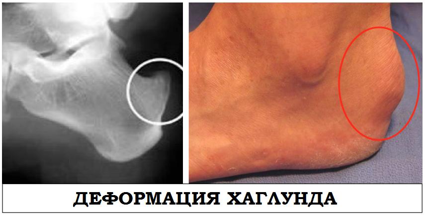 Болезнь шинца у детей и взрослых - симптомы и лечение | medeponim.ru