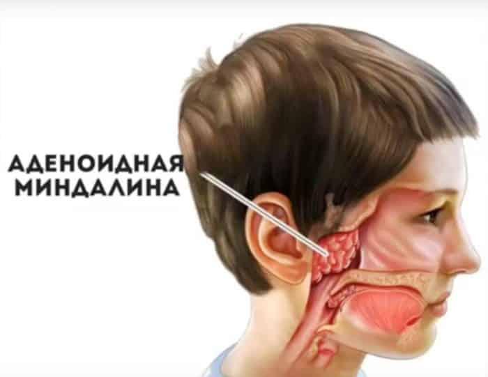 Ингаляции небулайзером при аденоидах у детей pulmono.ru ингаляции небулайзером при аденоидах у детей