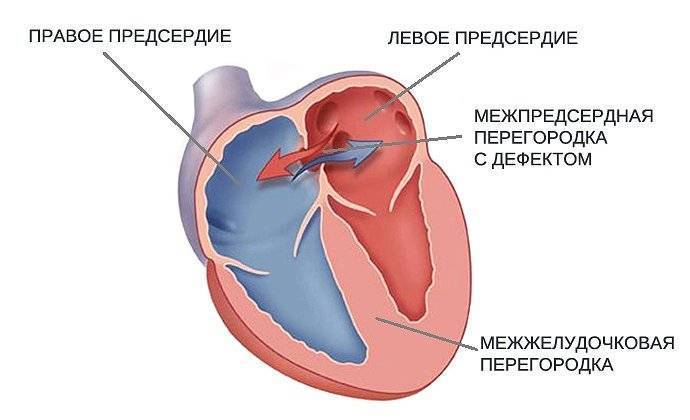 Овальное окно у новорожденных: диагностика сердца и дальнейшее лечение