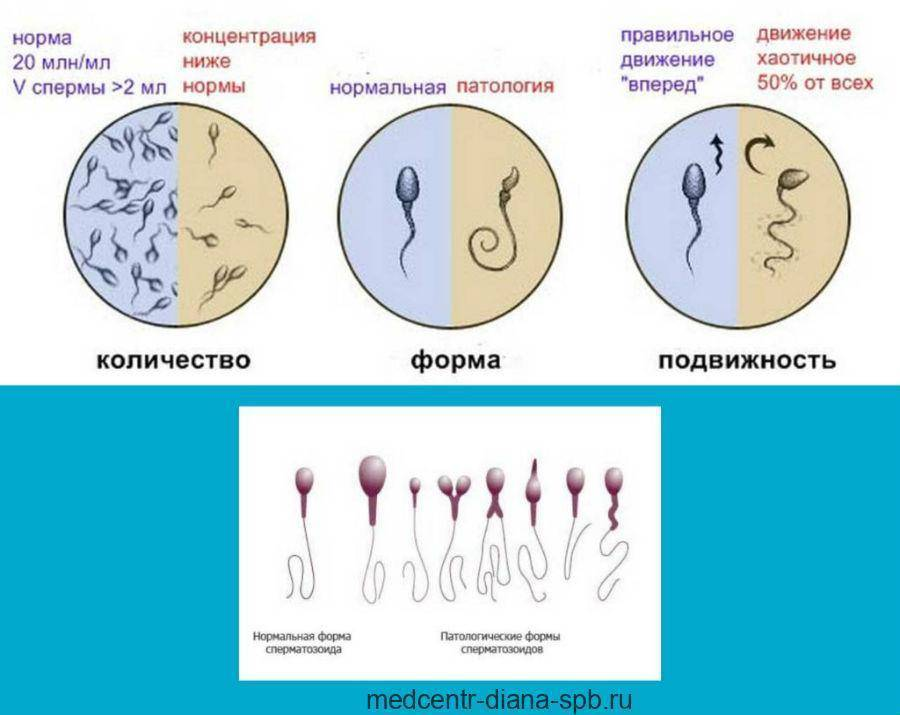 Кровь в спермограмме: причины, методы диагностики, особенности лечения