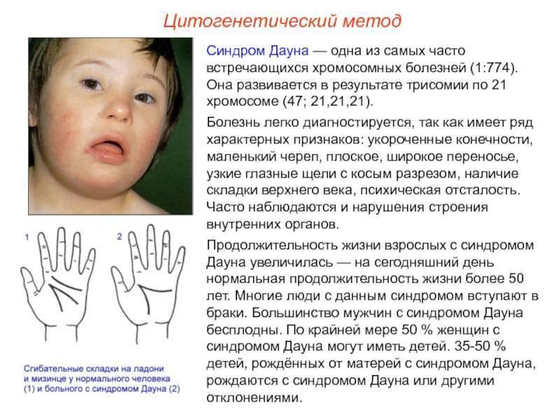 Болезнь синдром дауна: виды, причины возникновения, симптомы
