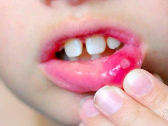 Правила лечения афтозного стоматита у детей в зависимости от стадии, фото заболевания, описание симптомов и причин возникновения