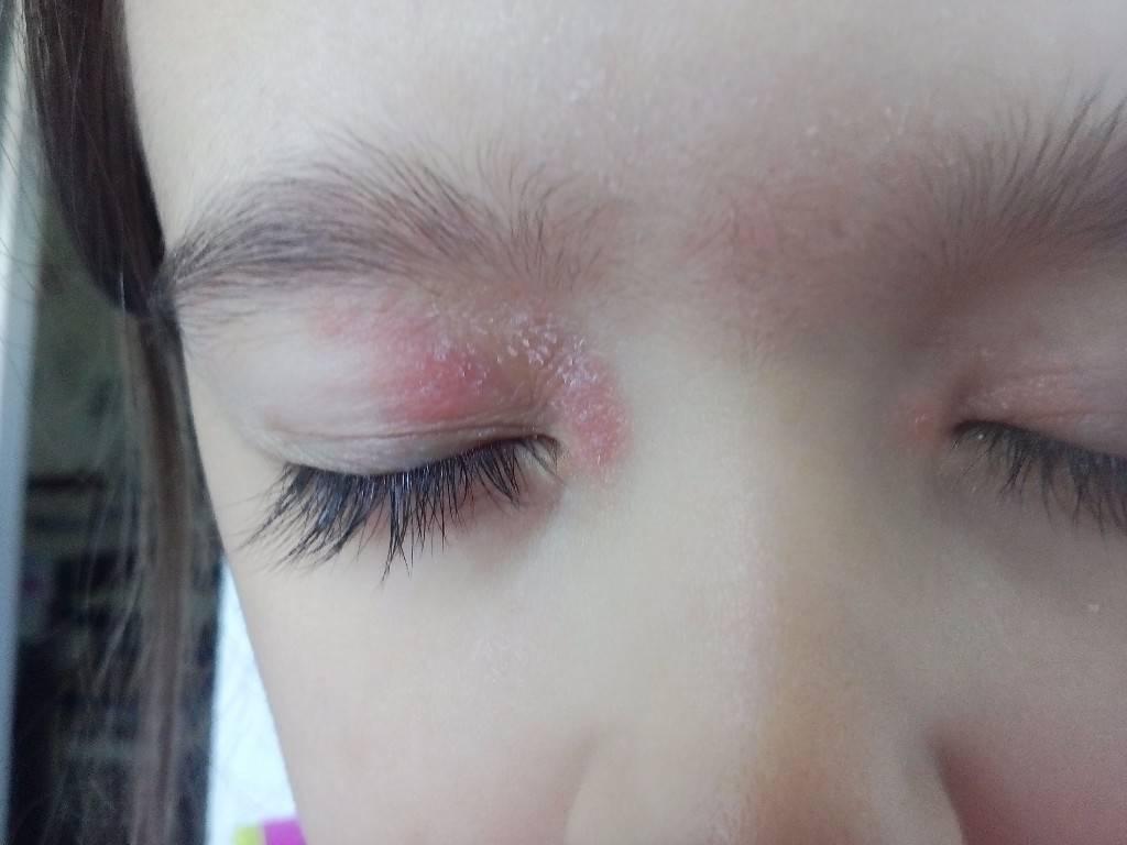 Сыпь вокруг глаз: белые и красные прыщики на веках у ребенка – что это может быть?