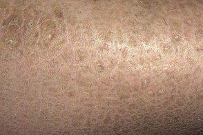 Ихтиоз кожи у новорожденных детей: опасно ли это заболевание, что делать и как лечить малыша?