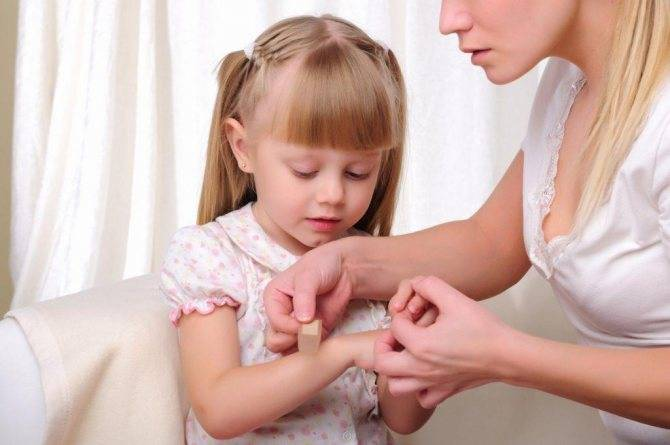 Чем обработать рану ребенку на лице. у ребенка после падения мокнущая рана — как лечить ссадину и чем ее обработать? народные средства при ссадинах и порезах у ребенка