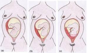 Плацента по задней стенке: что значит краевое предлежание по задней стенке матки, особенности расположения и прогнозы