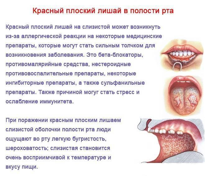 Во рту у ребенка язвочки - чем и как, лечить, обрабатывать