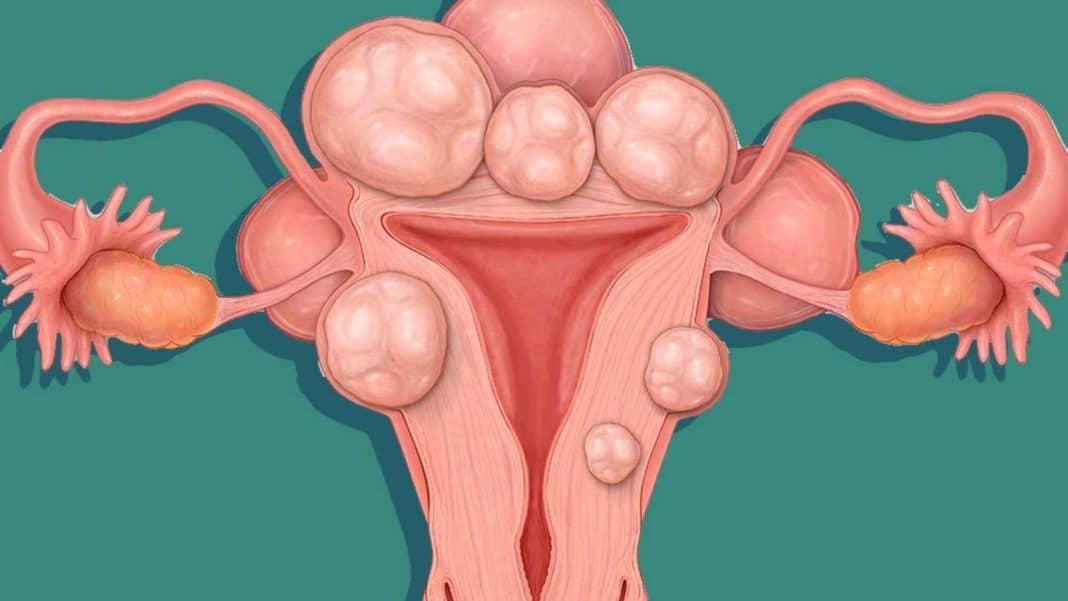 Как забеременеть при загибе матки: можно ли при загибе влево или вправо зачать с первого раза, и какие позы для зачатия, если матка отклонена кзади