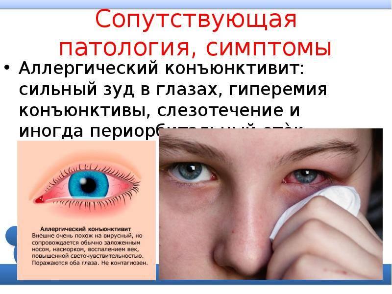 Аллергический конъюнктивит у ребенка: симптомы и лечение