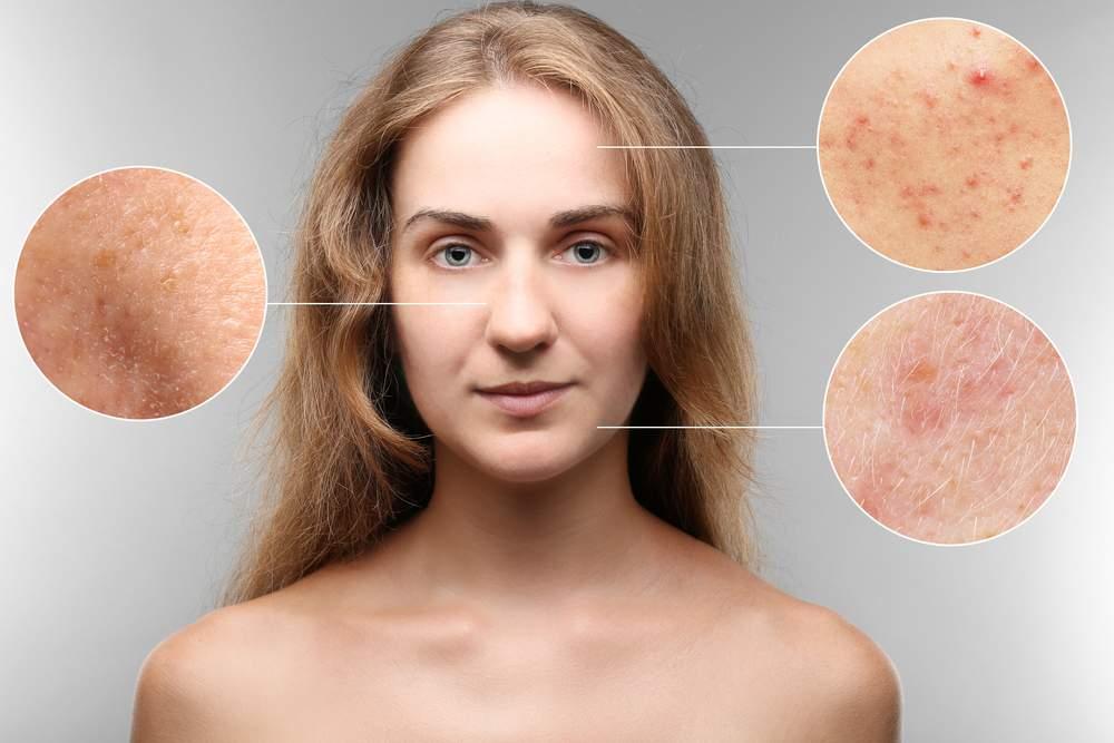 Причины образования гусиной кожи у ребенка, методы лечения