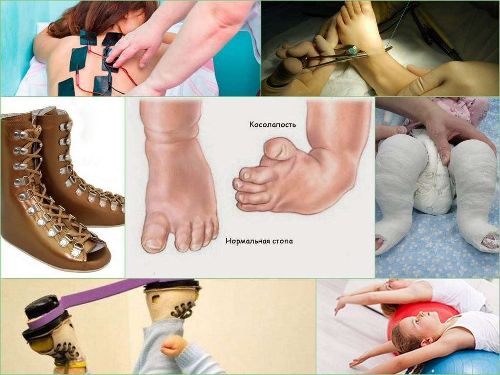 Лечение при косолапости у детей: массаж, упражнения