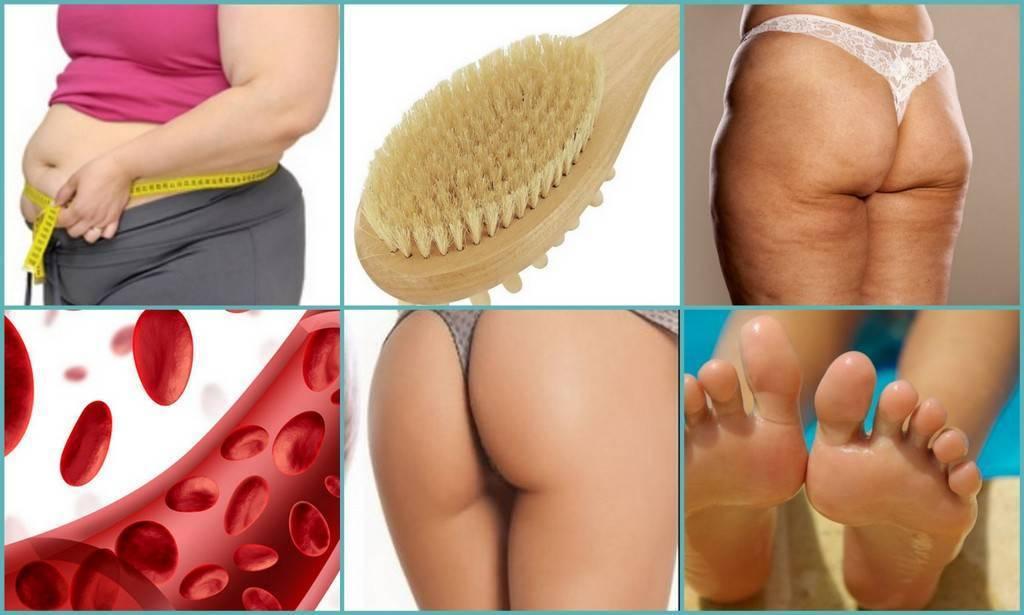 Массаж тела сухой щеткой – бюджетный метод борьбы с целлюлитом