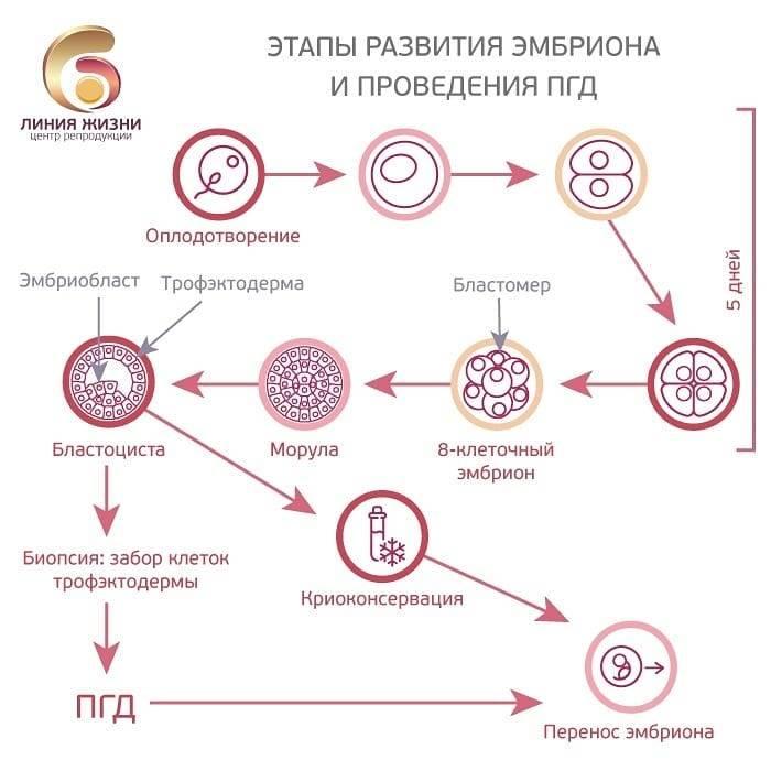 Подсадка эмбрионов при эко в деталях: как происходит перенос