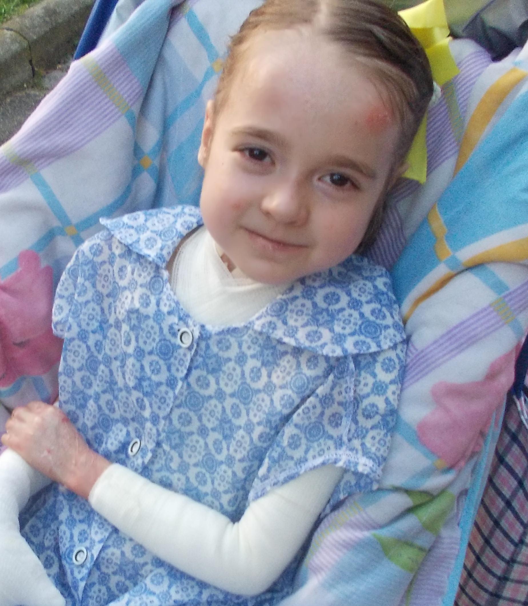 «дети-бабочки»: что нужно знать о буллёзном эпидермолизе