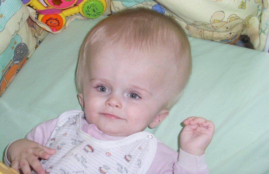 Гидроцефалия головного мозга у детей: причины, симптомы, последствия