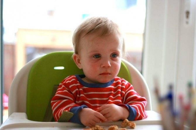 У ребёнка гноятся глаза и насморк - все о простуде и лор-заболеваниях