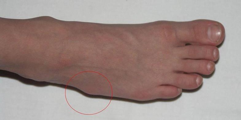 Гигрома у ребенка на ноге: причины, симптомы, диагностика и лечение