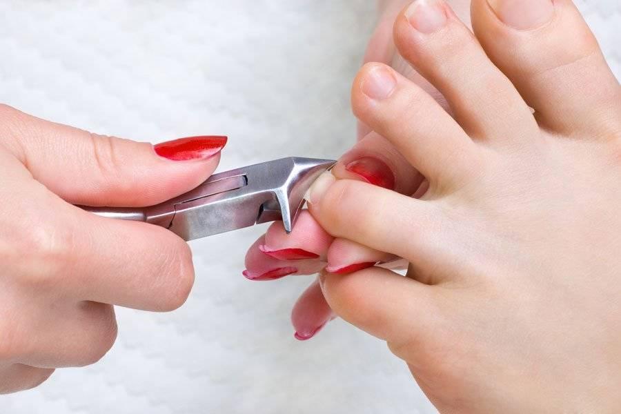 Как правильно стричь ногти на ногах?