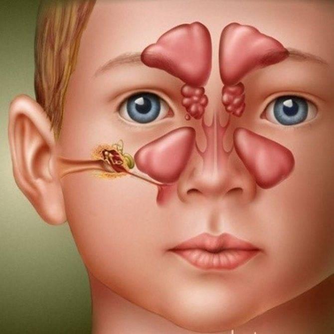 Острый синусит: причины появления, симптомы, способы эффективного лечения