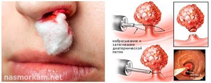 Полипы в полости носа: симптомы и причины