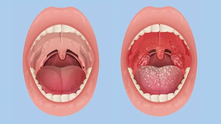 Герпес в горле у ребенка - причины возникновения, симптомы, типы, диагностика и лечение