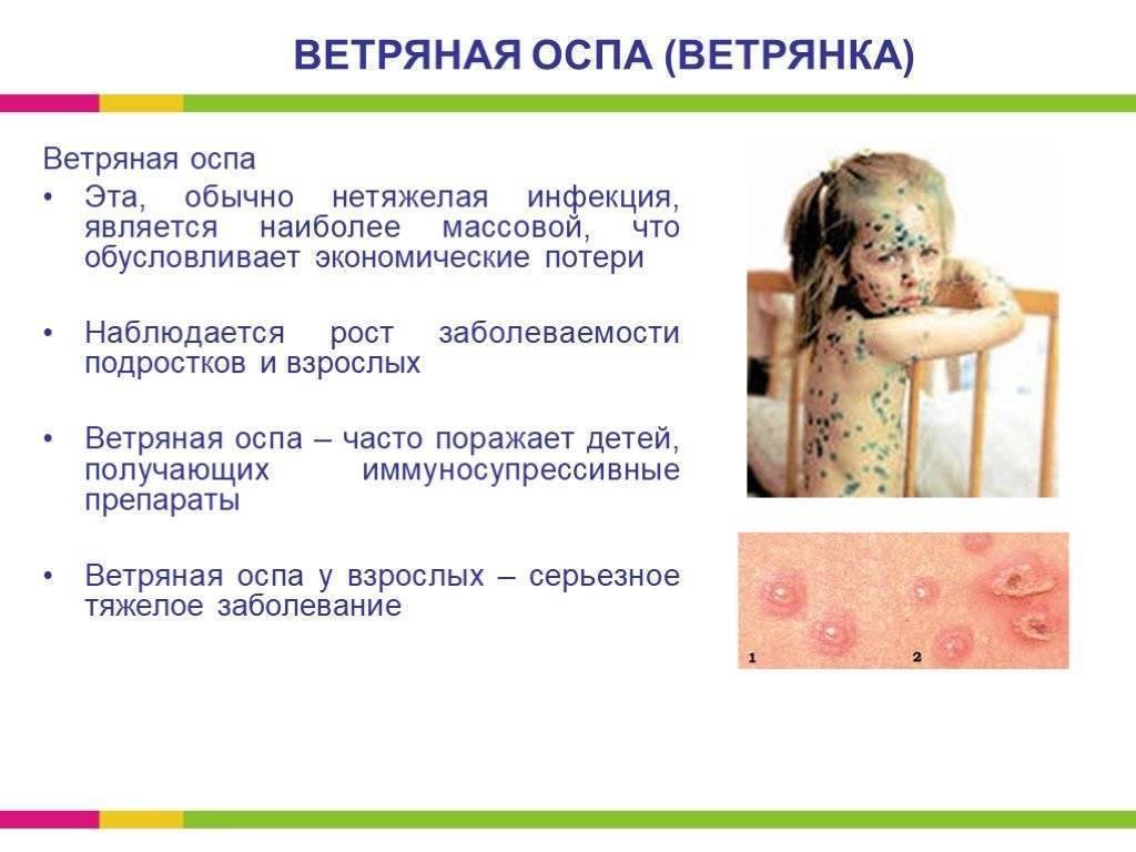 В чем опасность вирусной пузырчатки у детей? симптомы вирусной пузырчатки у детей и методы лечения инфекционного заболевания