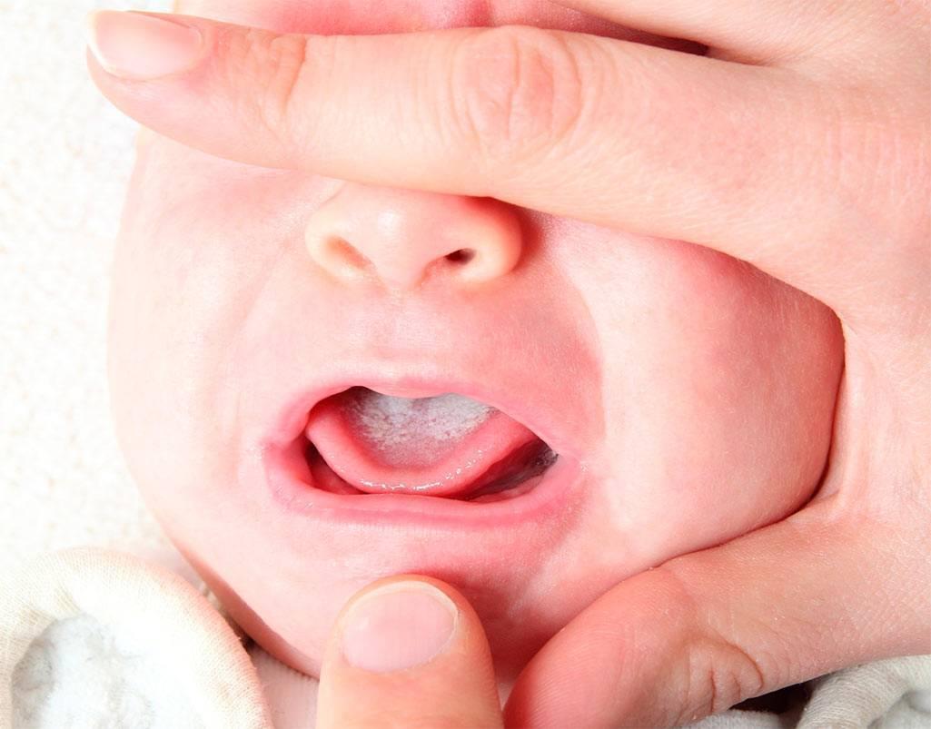 У ребенка на грудном вскармливании белый язык | уроки для мам
