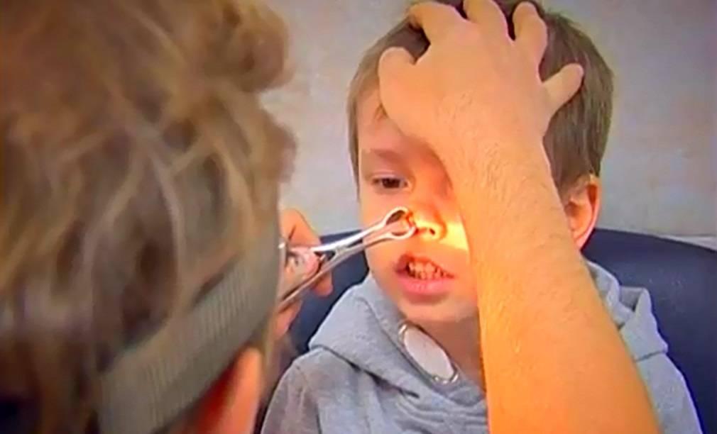 Инородное тело в носу у ребенка: как достать из носа, первая помощь, что делать при попадании предмета в нос
