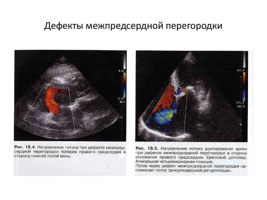 Дефект межпредсердной перегородки сердца у детей и взрослых: причины, симптомы, как лечить