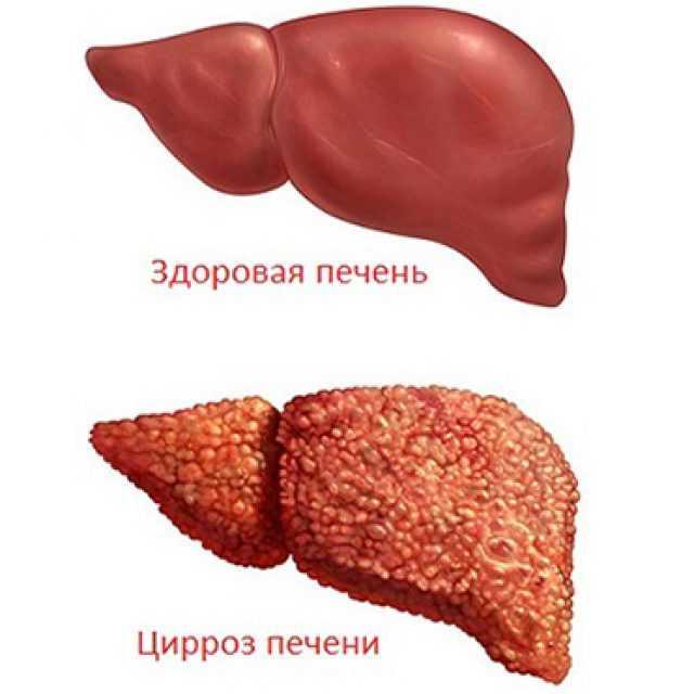 Что такое реактивное состояние поджелудочной железы и печени у детей, как проявляются диффузные изменения?