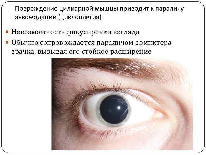 Глазные капли при спазме аккомодации